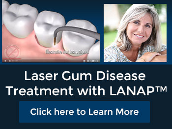 Laser Gum Disease Treatment with LANAP